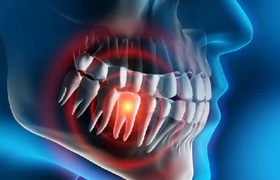 Computer image of a highlighted toothache